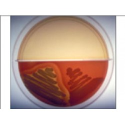 BLOOD AGAR - MAC CONKEY AGAR BIPLATE 20ml
